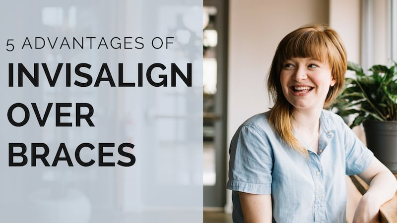 The Top 5 Advantages of Invisalign over Braces